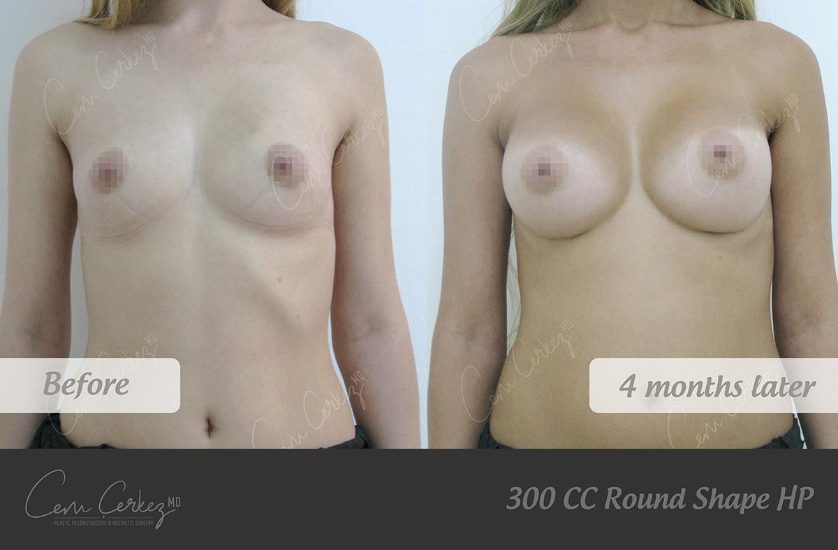 Breast Procedures 1-1