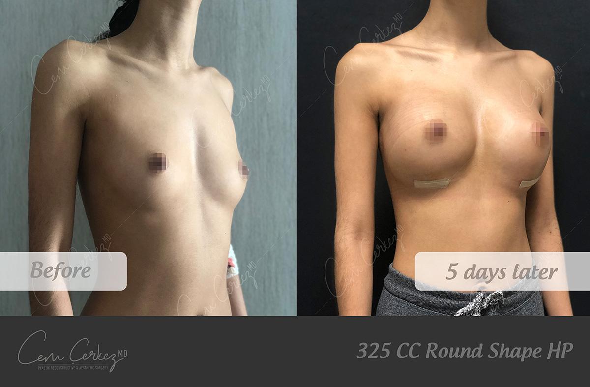 Breast Procedures 3-2