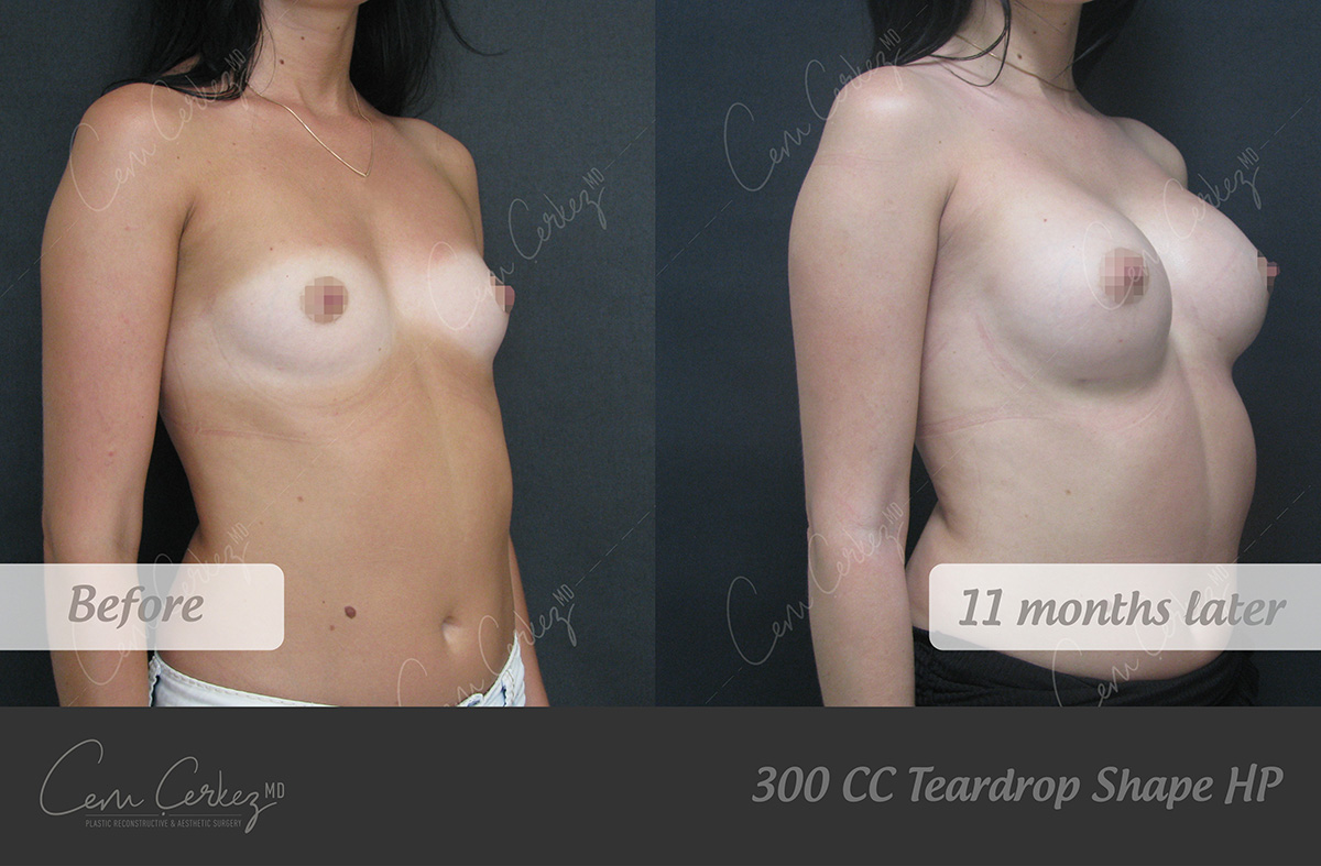 Breast Procedures 5-2