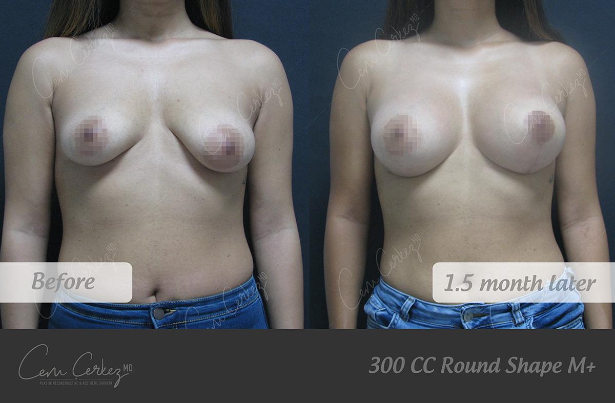 Breast Procedures 6-1
