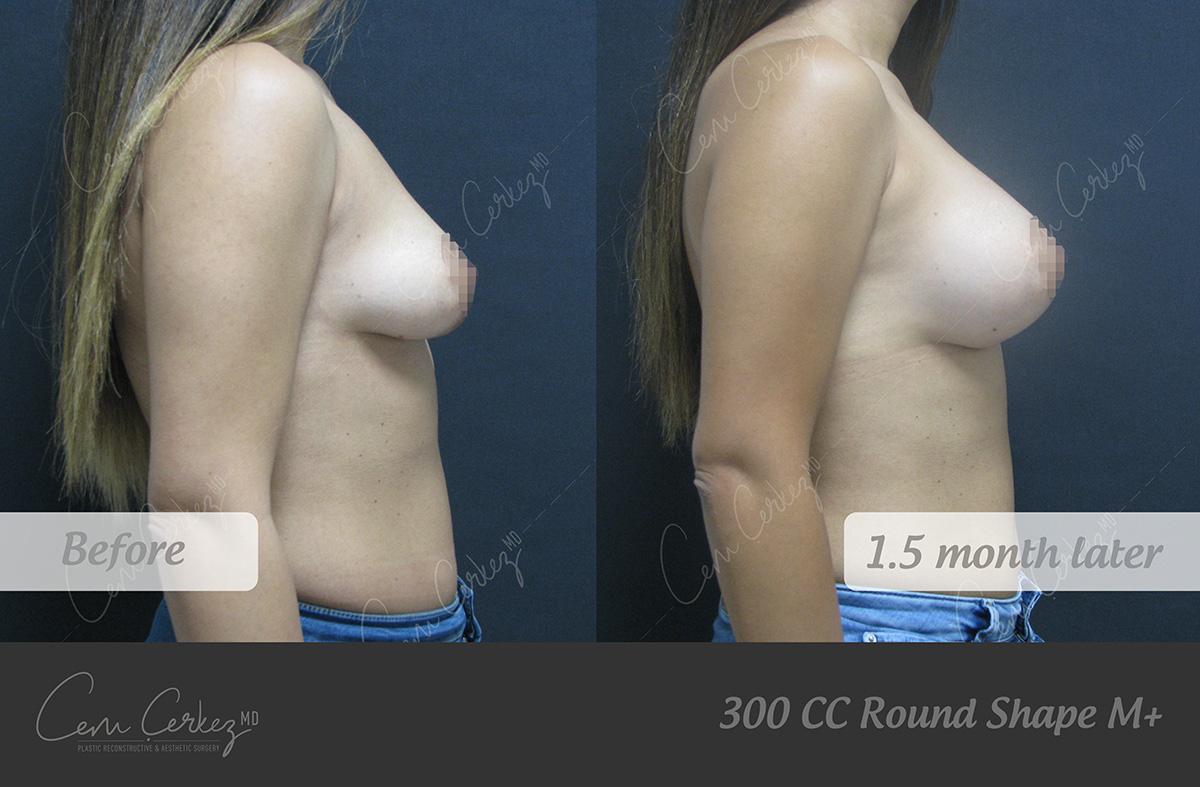 Breast Procedures 6-3