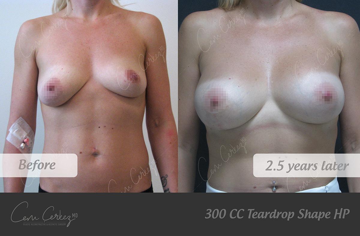 Breast Procedures 7-1