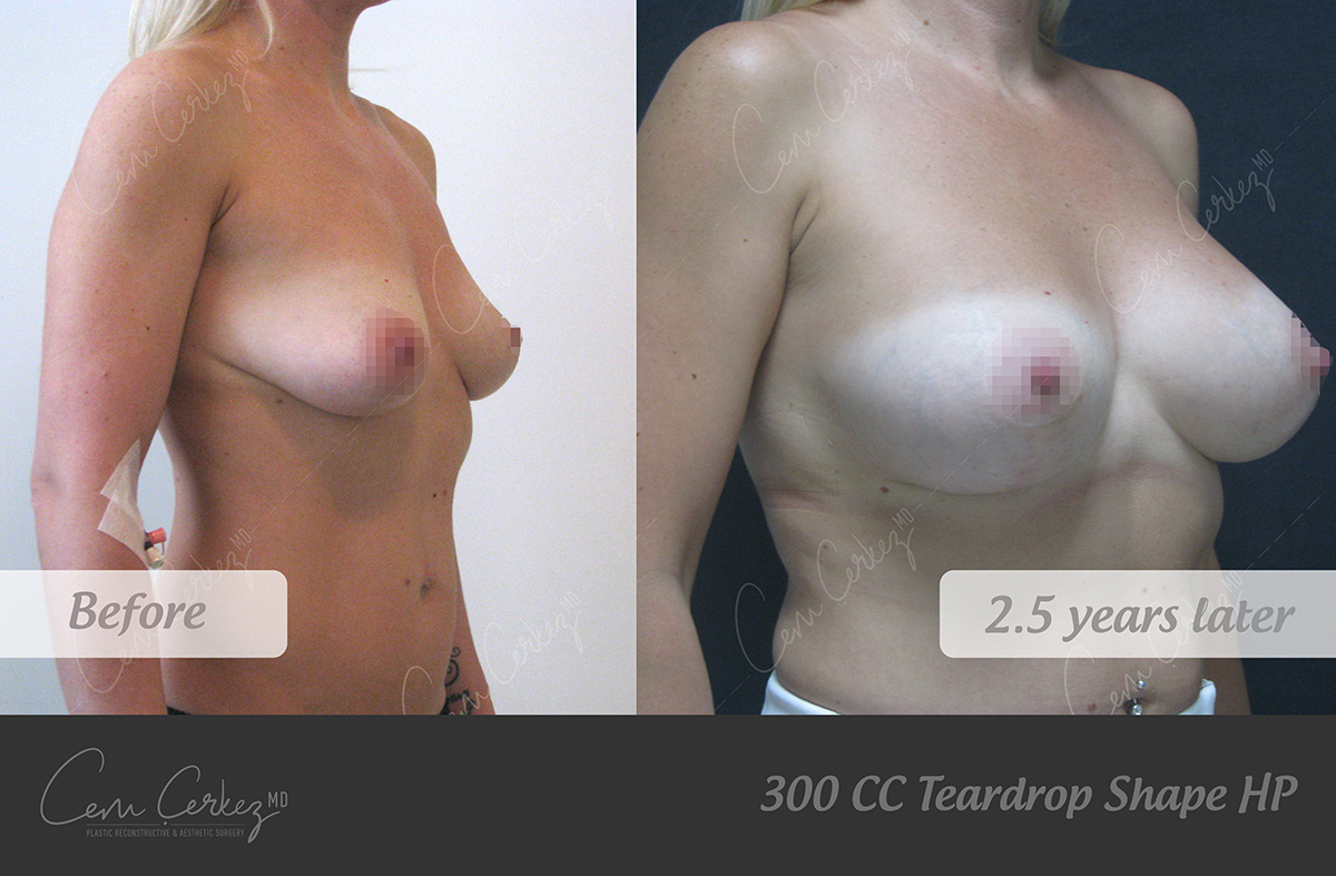 Breast Procedures 7-2