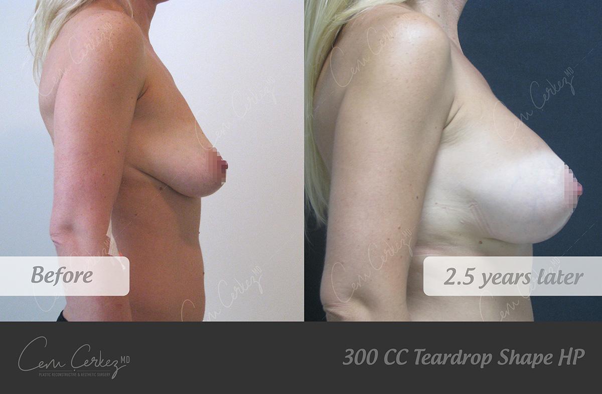 Breast Procedures 7-3