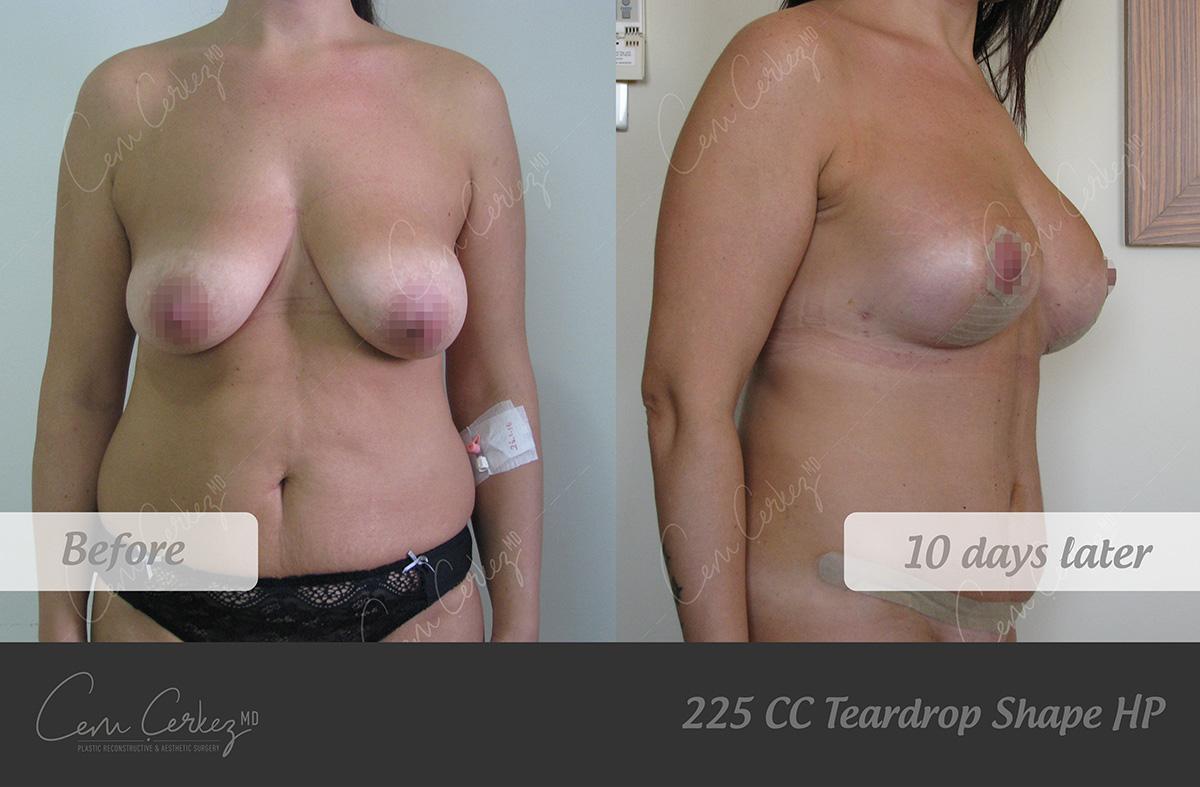 Breast Procedures 8-1