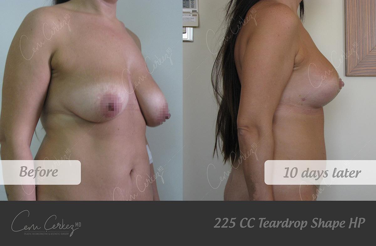 Breast Procedures 8-2