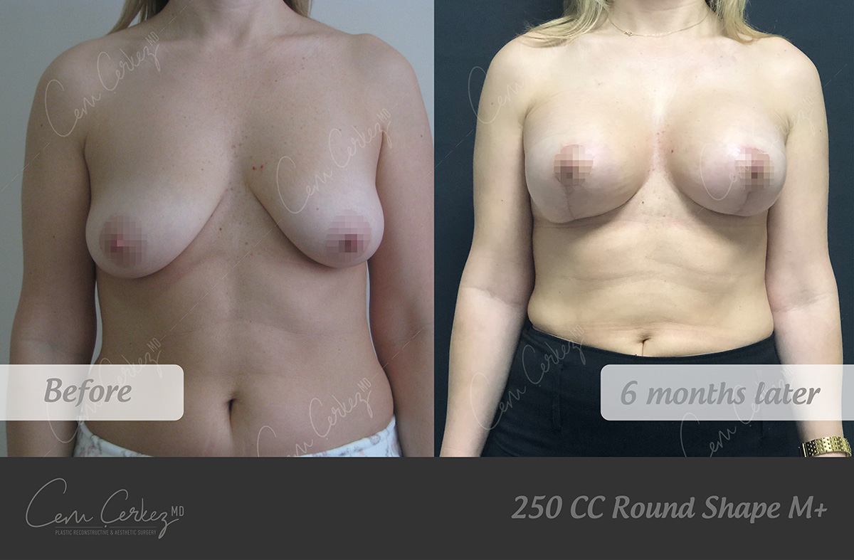 Breast Procedures 9-1