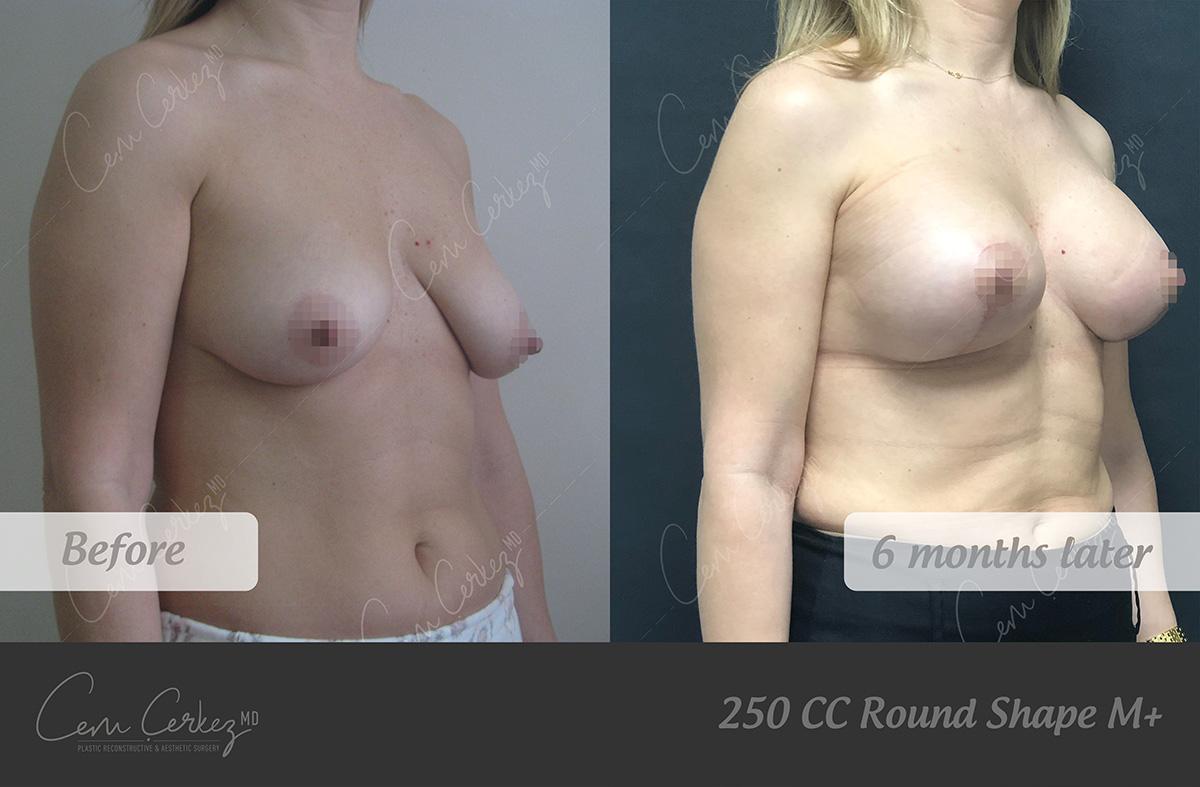 Breast Procedures 9-2