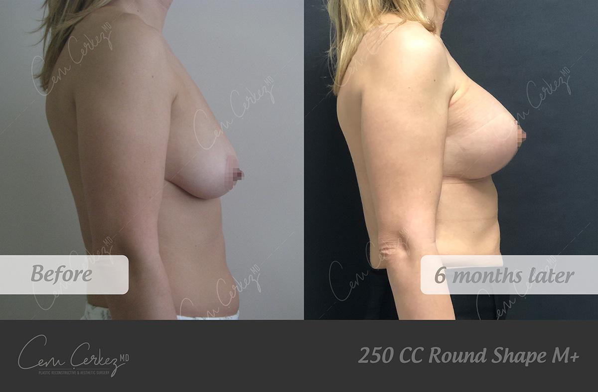 Breast Procedures 9-3